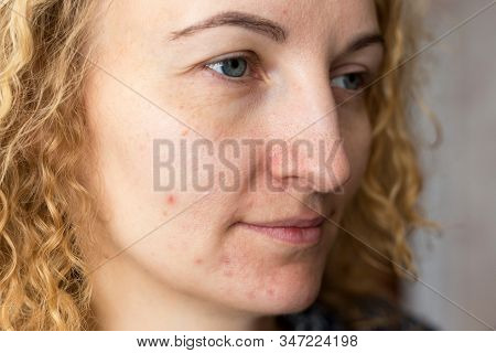 Portrait Of Young Beautiful Woman With Problematic Skin. Post-acne, Scars And Red Festering Pimples