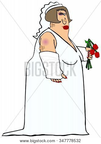 Illustration Of A Chubby Bride Wearing Her Gown With Assorted Bruises, Broken Arm And Bandages While