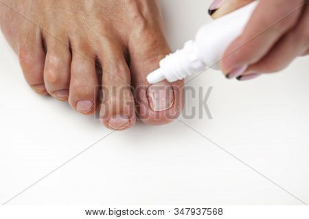 Fungus Of The Nail Plate (onychomycosis). Nail Care, Nail Fungus Treatment, A Healthy Foot, Beautici