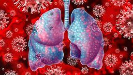 Respiratory Virus And Coronavirus Outbreak And Coronaviruses Influenza Background As Dangerous Flu S