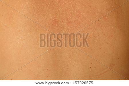 Human Skin And Sweat