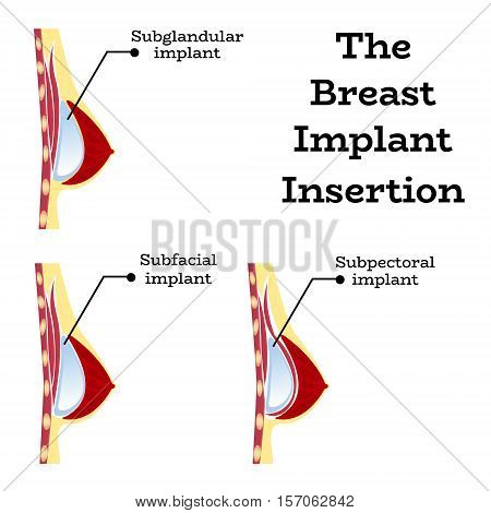 Plastic surgery of silicone breast implant, vector illustration.Female chest anatomy structure - medical wallpaper manual for implantaion, implant insertion or breast augmentation surgery