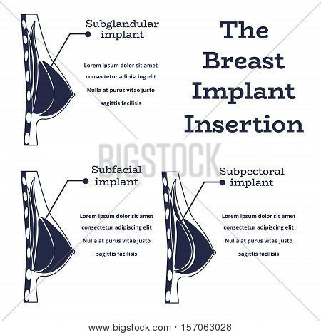 Plastic surgery of silicone breast implant, monochrome vector illustration.Female chest anatomy structure - medical wallpaper manual for implantaion, implant insertion or breast augmentation surgery