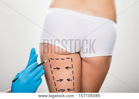 Close-up Of Surgeon Hand Holding Scalpel On Woman's Leg Marked With Lines