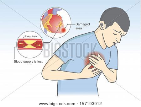 Man have early symptoms of heart attack. Blood flow get blocked by fatty which that is cause angina and heart attack. Healthcare and medical illustration.