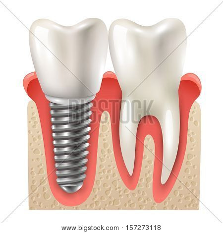 Dental implants and tooth set model closeup side view realistic image vector illustration