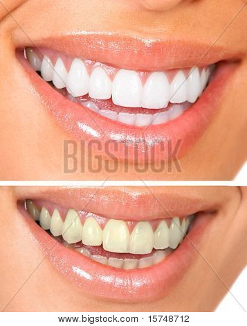 Whitening. Dental care. healthy woman white teeth.