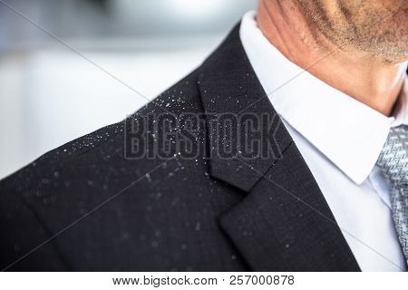 Close-up Of A Businessperson With Dandruff On His Shoulder