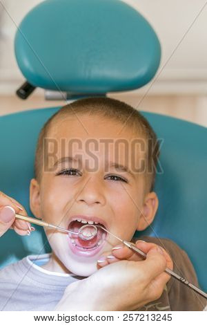 Dentist Examining Little Boy's Teeth In Clinic. Close Up Of Boy Having His Teeth Examined By A Denti