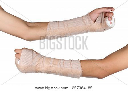 Close Up Of Young Asian Boy With Arm Plaster Fiberglass Cast Covering The Wrist Finger And Arm. Stud