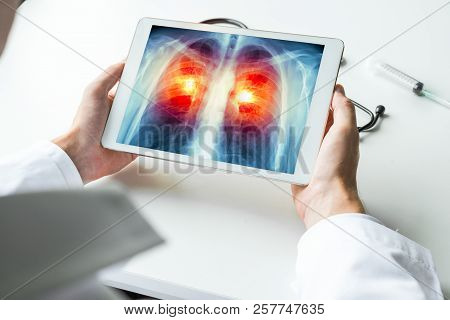Doctor watching a xray of lung cancer on digital tablet. Radiology x-ray concept poster