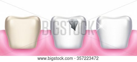 Teeth Problems. Tooth Decay, Dental Diseases, Infection Caries And Enamel Destruction. Professional