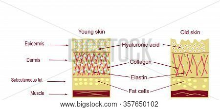 The Anatomical Structure Of The Skin. Elastin, Hyaluronic Acid, Collagen. Skin Aging, Wrinkles Befor