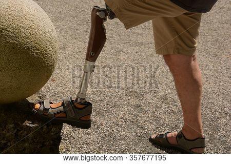 Bionic Carbon Leg Prosthesis Of A Man, Left Leg Prosthesis Self-assured Man Wearing Shorts