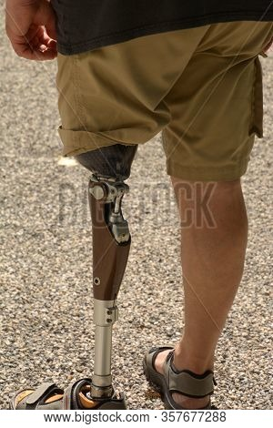 Left Leg Prosthesis Self-assured Man Wearing Shorts, Man With Amputee Left Leg With Carbon Prosthesi