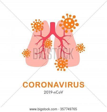 Lung And Virus Cell Concept Design. Covid 19 Warning Banner. Novel Coronavirus Pneumonia Ncp. Stock