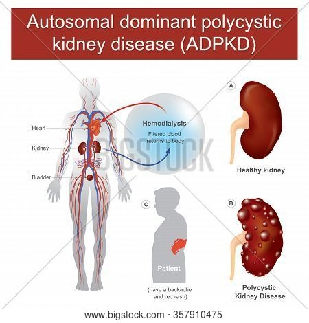 Autosomal Dominant Polycystic Kidney Disease. Have A Backache And Acute Loin Pain, Enlargement Of On