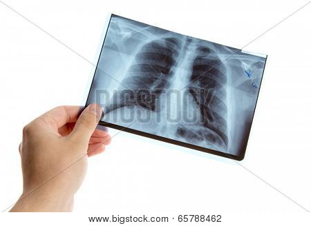 Male hand holding lung radiography, isolated on white background
