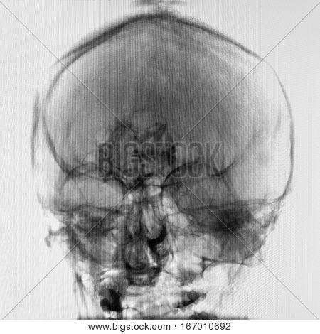Human Head X-ray Image