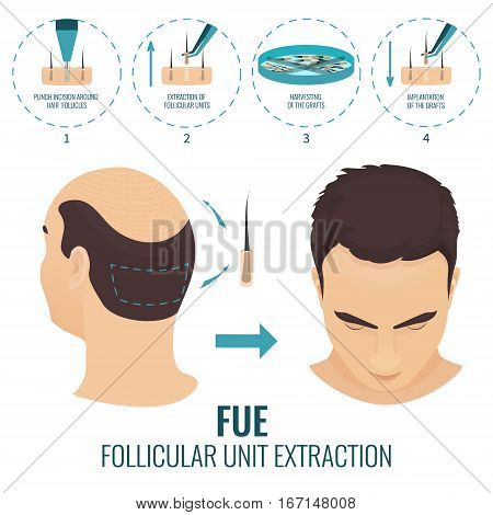 Male hair loss treatment with follicular unit extraction. Stages of FUE procedure. Alopecia infographic medical design template for transplantation clinics and diagnostic centers. Vector illustration.