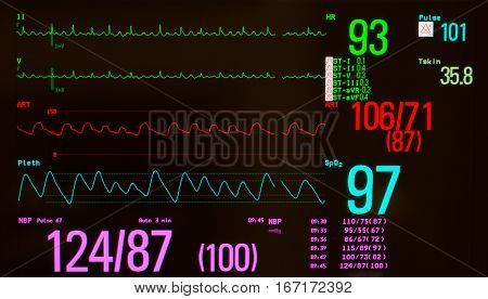 Monitor with black screen showing atrial flutter on the green lines, arterial blood pressure on red line, oxygen saturation on blue line, temperature and noninvasive blood pressure.