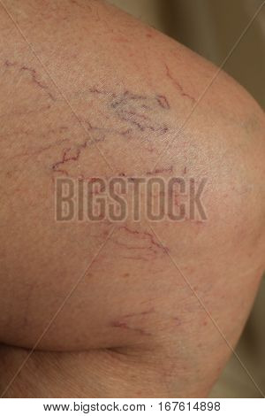 Spider veins near knee on upper leg, closeup