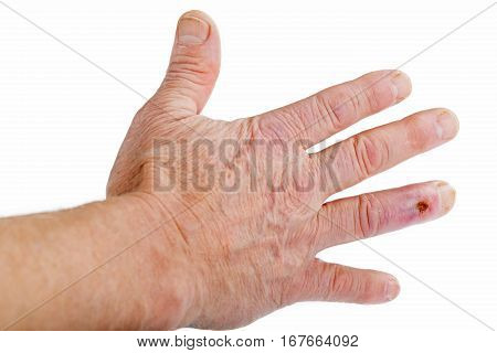 The postoperative scar on the fourth finger