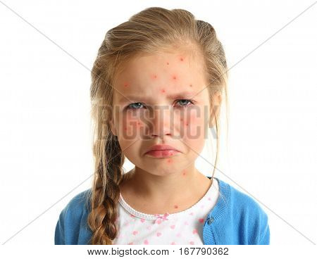 Little girl with red pimples on white background. Chicken pox concept
