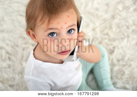 Little girl with red pimples at home. Chicken pox concept