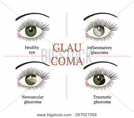 Glaucoma Chronic Eye Pathology. Eye Disease. Ophthalmology Health. Glaucoma Types. Vector Flat Eye H