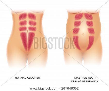 Diastasis Recti During Pregnancy, Also Known As Diastasis Rectus Abdominus Or Abdominal Separation,