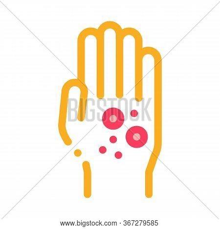 Dermatitis Rash On Hands Icon Vector. Dermatitis Rash On Hands Sign. Color Symbol Illustration