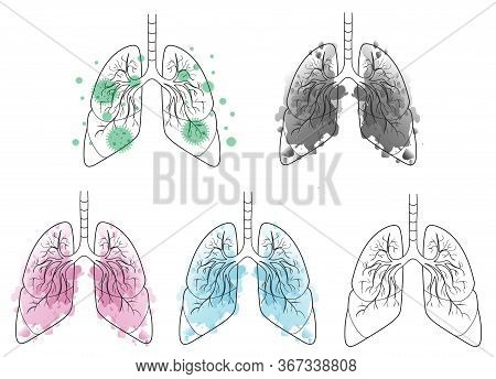 Watercolor Lungs Set Pack. Clean, Healthy, Sick. Smokers Lungs.virus. Coronavirus Respiratory. Human
