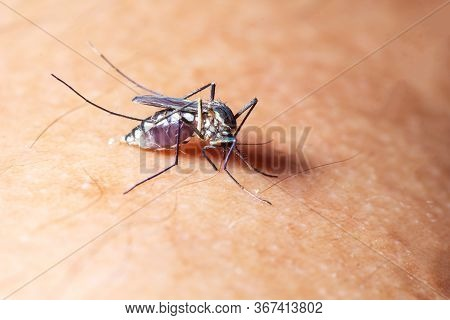 Mosquito Sucked Blood On Human Skin. Season Of Mosquitoes. Flu And Fever Dengue.