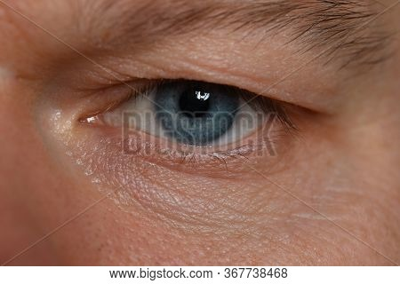 Close-up Unkind Angry Look Man, Eye Young Man. Depression And Anxiety During Pandemic. Focused Atten