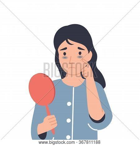 Dark Circles Under Eyes. Girl With Bruises From Insomnia, Disease, Fatigue. Flat Vector Cartoon Mode
