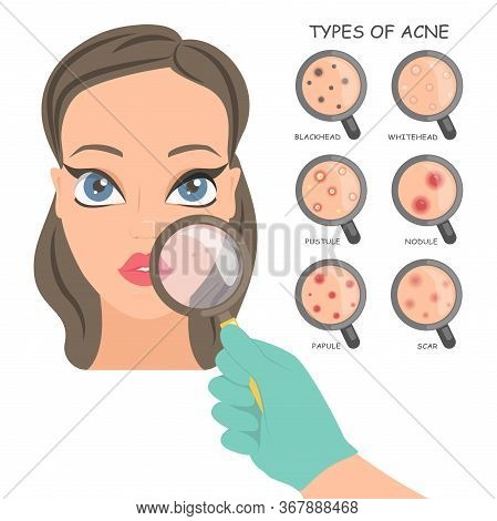 Types Of Acne  3