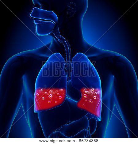 Pulmonary Edema - Blood in Lungs