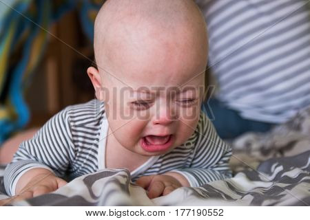 Cute baby boy with Down syndrome crying on the bed in home bedroom