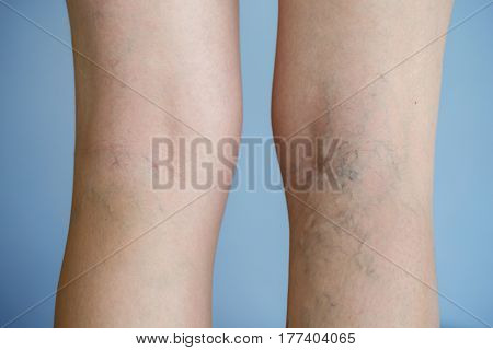 Painful varicose veins (spider veins varices) on a severely affected leg. Ageing old age disease aesthetic problem concept.