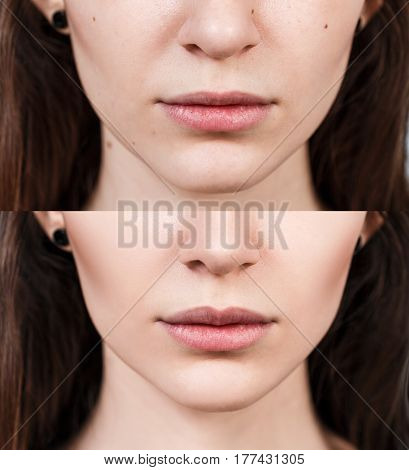 Young woman before and after lip filler injections. Lip augmentation concept.