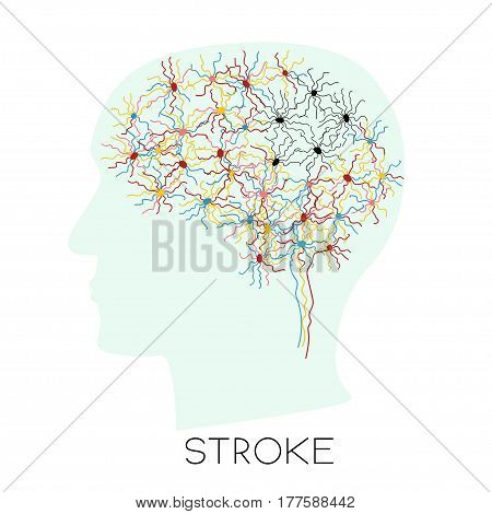 Stroke Concept With Human Head Silhouette