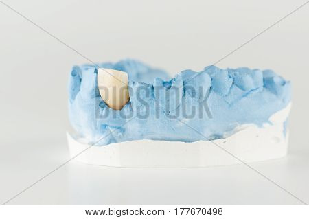 metal-ceramic dental crown is tried on an artificial model