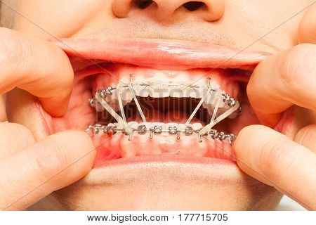 Man painfully wear orthodontic braces and latex rubber rings opening mouth with fingers
