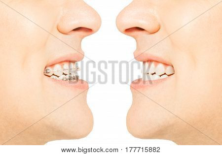 Two images of man with and without braces for orthodontic correction of jaw bite shape