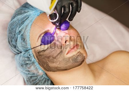 Carbon face peeling. Laser pulses clean the skin of the face. Hardware cosmetology. The process of photothermolysis warming the skin. Facial skin rejuvenation.