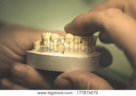 Dental prosthesis artificial tooth prosthetic hands working on the denture false teeth.