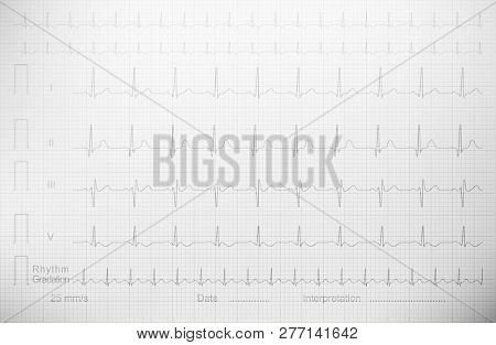 Cardiogram With Lined Paper As A Background For A Medical Publication, Annual Report, Etc. Echocardi