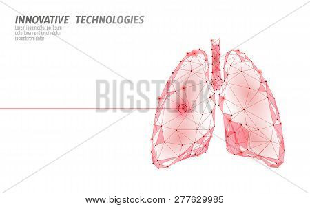 Human Lungs Laser Surgery Operation Low Poly. Medicine Disease Drug Treatment Painful Area. Red Tria