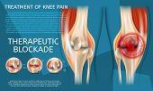 Realistic Illustration Treatment of Knee Pain. 3d Vector Image Banner Therapeutic Blockade Human Knee Joint. View Before and After Medical Treatment. Visualization Knee from Different Angles poster